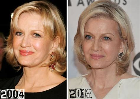 celebrity neck lift diane sawyer plastic surgery before and after celebrity