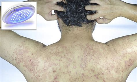 blue light therapy psoriasis blue light home treatment reduces psoriasis symptoms