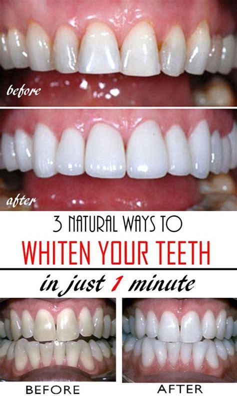 natural ways  whiten teeth  home homemade change