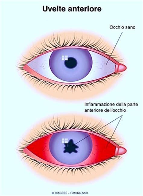 dolore all angolo interno dell occhio dolore agli occhi e in testa