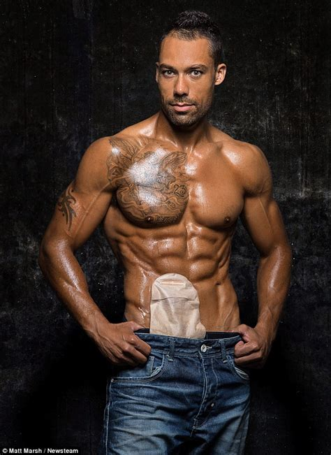 bela this world we livin bodybuilder with bowel disease becomes model colostomy
