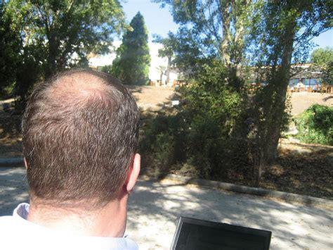 haircuts for crown bald spots những kiểu đầu ph 249 hợp với đ 224 n 244 ng 237 t t 243 c đại kỷ nguy 234 n