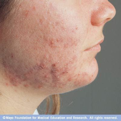 hair follicle chin acne disease reference guide drugs com