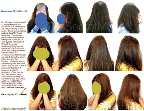hair styles for trichotellamania trichotillomania hair length hair pulling my hands were
