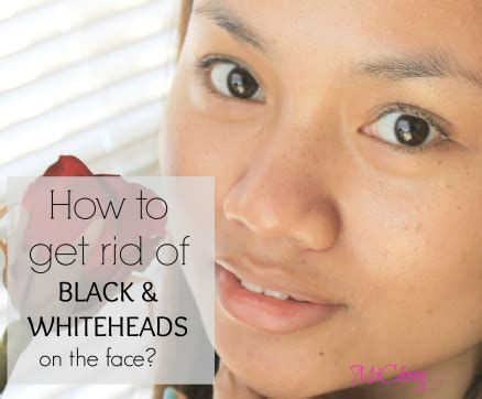 how to get rid of blackheads whiteheads zits acne fast 301 moved permanently