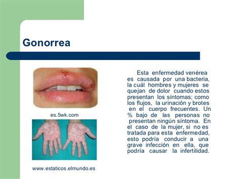 fotos de gonorrea imagenes de pacientes con gonorrea presentacion enfermedades de transmision sexual
