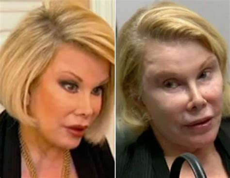plastic surgery or natural aging changes joan rivers undergoes another cosmetic surgery picture