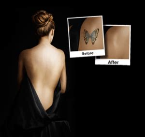 tattoo removal costa mesa newport removal costa mesa fast removal
