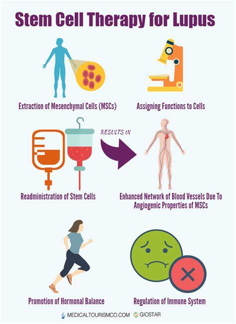 stem cell treatment now stem cell treatment now some alternative lupus stem cell treatment in mexico autoimmune diseases