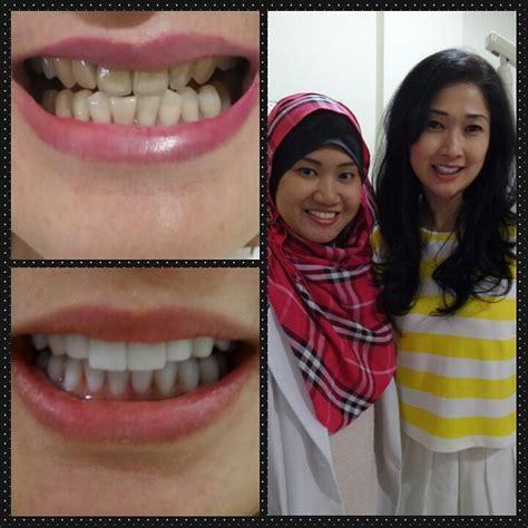 Biaya Pemutihan Gigi Veneer testimonial audy dental klinik gigi spesialis dengan newhairstylesformen2014