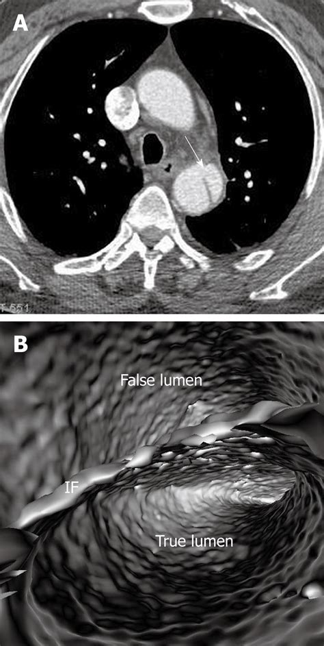 Three Dimensional Contrast Enhanced Mr Angiography Of Aortic Dissection A Pictorial Essay by Three Dimensional Contrast Enhanced Mr Angiography Of Aortic Dissection A Pictorial Essay