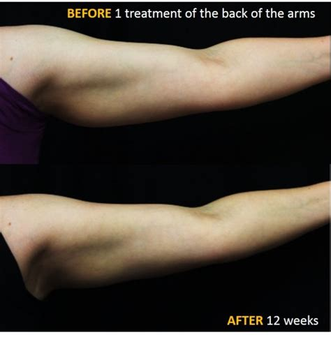 coolsculpting arms before and after pictures coolsculpting on arms before and after coolsculpting