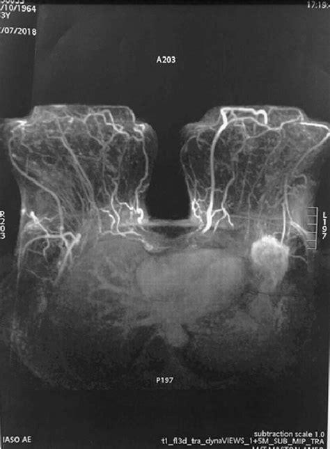 mri detected  tumor   left axilla    clarify  scientific