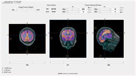 medical image reader  viewer file exchange matlab