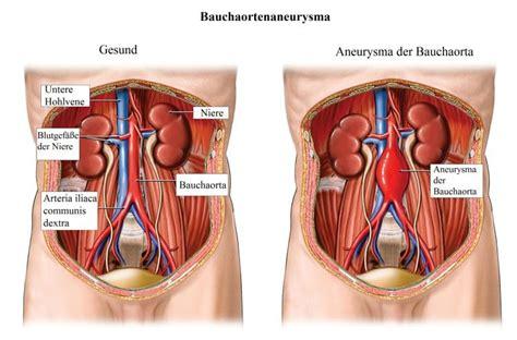 organi interni addome lato destro aneurysma bauchaorta hohlvene ruptur symptome und