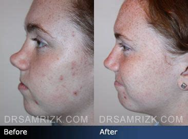 before and after photo of a 16 year patient who
