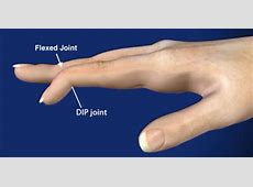 Mallet Finger Doctor Dallas Fort Worth, Mallet Finger ... Fractured Wrist Treatment