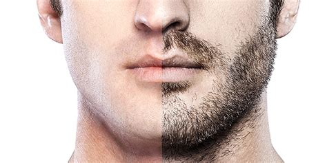 hair restoration before and after pictures clevens face gezichtsbeharingtransplantatie flyhealth behandelingen