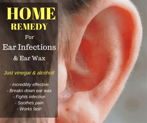 25 best ideas about home remedies for earache on