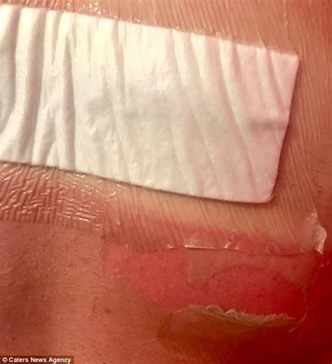 banana boat sunscreen burns 2018 woman says banana boat sunscreen caused 2nd degree burns