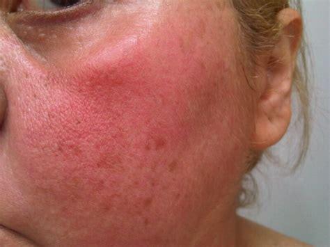 www cara eritema solar de cara cuello y escote y la methyl