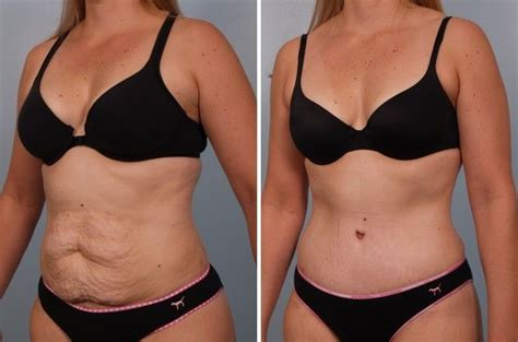 when can you have a tummy tuck after c section tummy tuck ambler lansdale plastic surgery strella