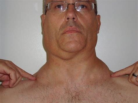swollen lymph nodes neck lymph nodes in neck wish these were muslces more lymph nodes out of not