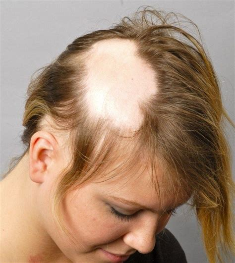 hairstyles for androgenectic alopecia 1000 images about alopecia on pinterest miss america