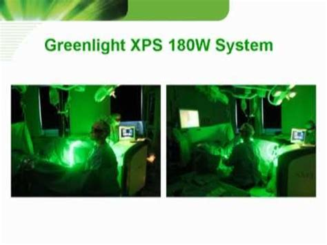 green light laser therapy greenlight xps 180w prostate laser treatment of male bph