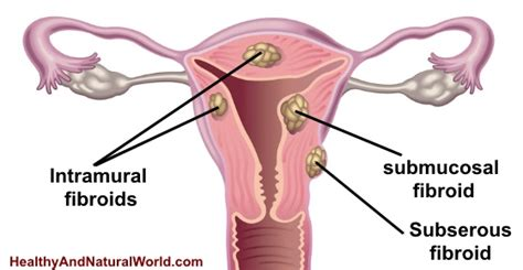 All Cell Detox Fibroids by 7 Warning Signs You May Uterine Fibroids