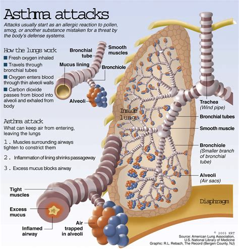 asthma attack ajit vadakayil allergy the overkill response of squeamish immune system capt