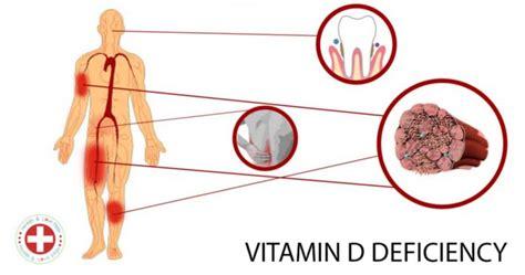 vitamin d and mood swings 9 symptoms of vitamin d deficiency