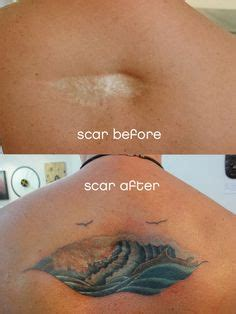 medical tattooing for scars 1000 images about tattos and cover up scars on
