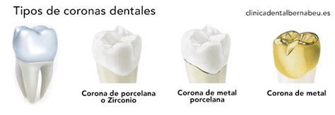 precios de fundas dentales coronas fundas dentales en madrid cl 237 nica dental bernabeu