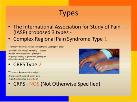 Media Coverage For Crps Rsd Reflex Sympathetic Dystrophy Pictures Posters News And On Your Pursuit