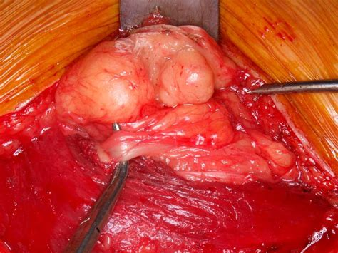 fatty tumor chondroid lipomas