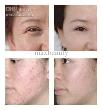 light treatment for face personal led beauty light for care skin tightening