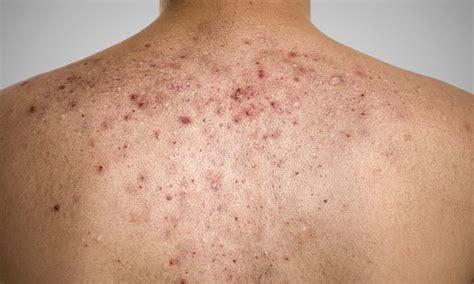 rid  acne scars
