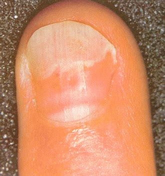 pale nail beds physical signs of malnutrition learnlovelift
