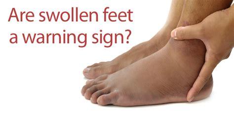 how long will my feet be swollen after c section footsmart blog 187 how serious are swollen feet
