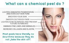 chemical peels what is it and what are the benefits