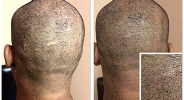 scalp micropigmentation to make hair ticker pictures scalp micro pigmentation services smp shaved effect and