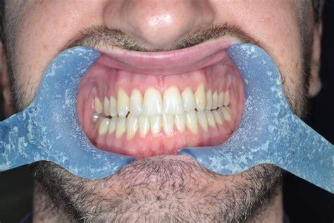invisalign bicester private dentist bucks   rectory