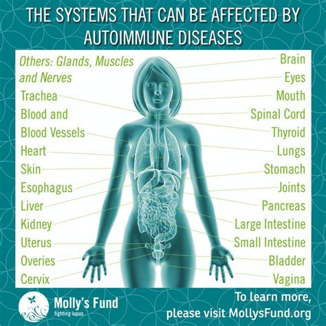 lupus can this autoimmune disease be treated naturally 77 best molly s fund blogs images on pinterest health