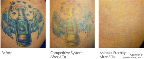 ruby laser tattoo removal q switched ruby laser astanza eternity laser