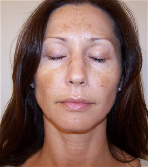 brown spots on causes treatment prevention