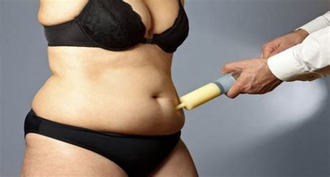 After C Section When Can I Get Again by Can I Get Liposuction After C Section Read Health