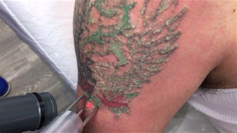 does laser tattoo removal hurt does laser removal hurt skin laser services