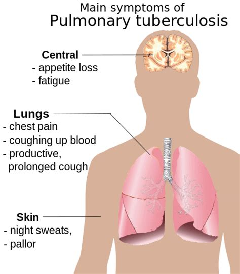 Tb Introducing See Work by File Pulmonary Tuberculosis Symptoms Svg Wikimedia Commons