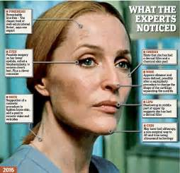 Ageless gillian and the botox files actress said plastic surgery had